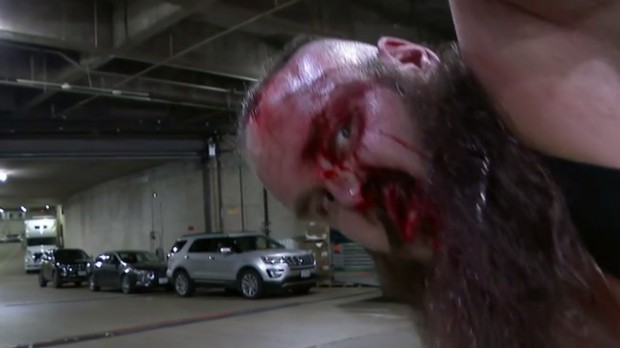 The bloodied face of Braun Strowman