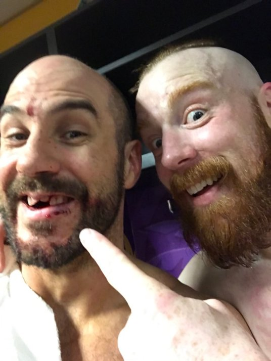 Cesaro and Shamus show off Cesaro's busted teeth